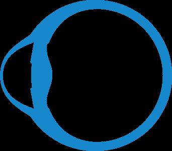 Die grafische Darstellung eines Keratoconus