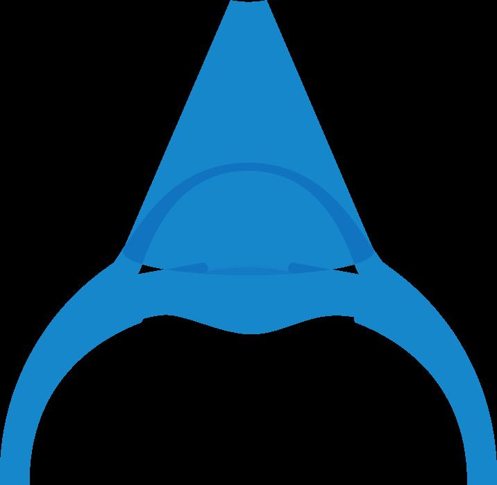 Die grafische Darstellung des Cornea Crosslinking Verfahren